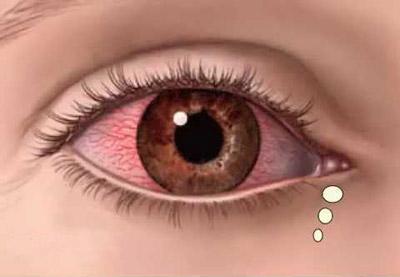 تصویر از یوئیت چیست؟ علائم و راه درمان بیماری یووئیت