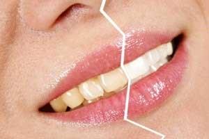 تصویر از زردی دندان هایتان را به کمک فویل آلومینیوم محو کنید!