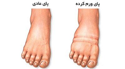 تصویر از وقتی پاها مثل بادکنک می شوند