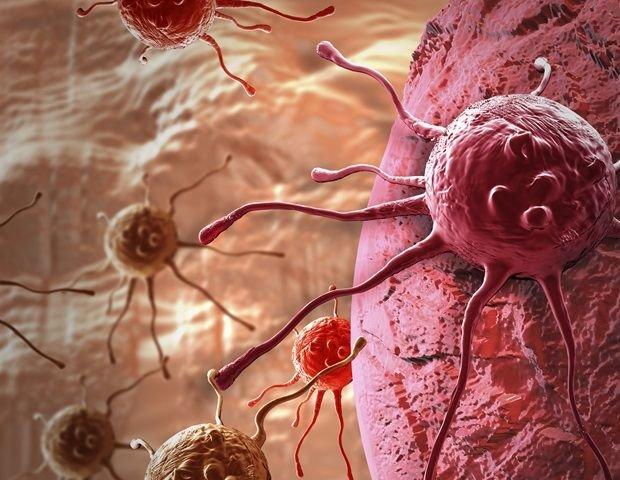 تصویر از جلوگیری از تشکیل تومورهای بدخیم با روشی نوین