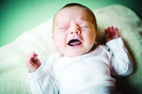 تصویر از زردی نوزادان را جدی بگیرید