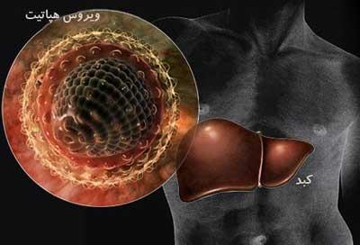 تصویر از آخرین آمار مبتلایان به هپاتیت C و B در کشور