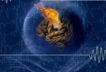 وبینار اختلالات عصبی تکاملی در فضای مجازی